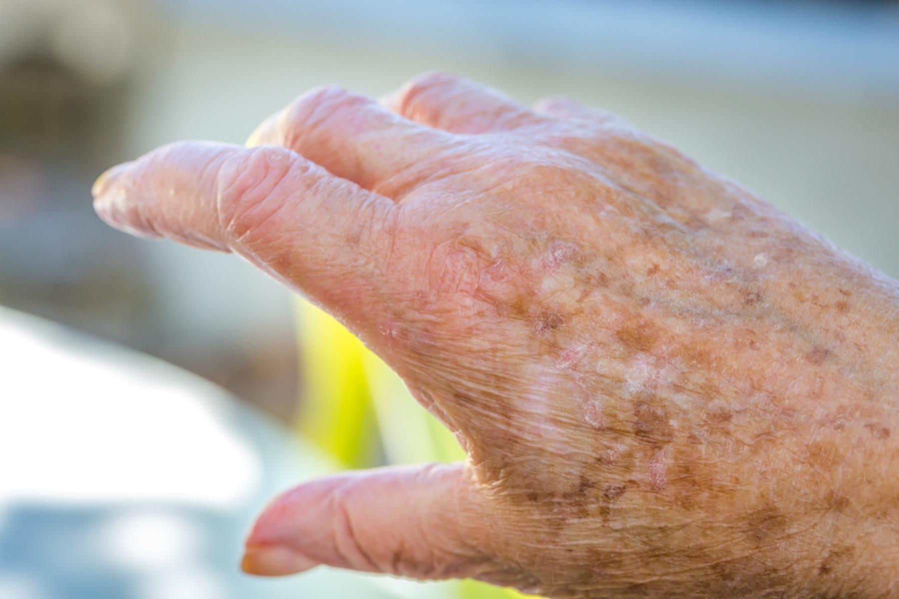 Elderly Care in Fair Lawn NJ: Senior Skin Care Tips